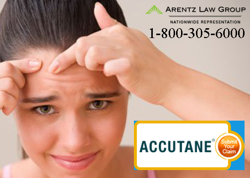 Accutane joint pain