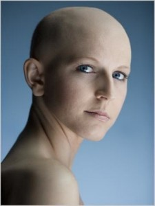 Chemo related permanent alopecia.