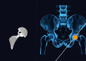 Hip implant judgements Hip research DePuy Pinnacle Metal Hip Bellwether