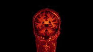 gadolinium brain