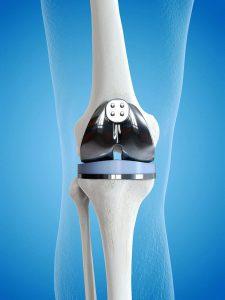 Depuy Knee Replacement